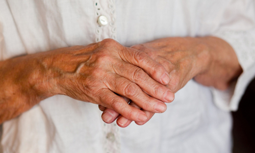 Проблема артрита пальцев рук
