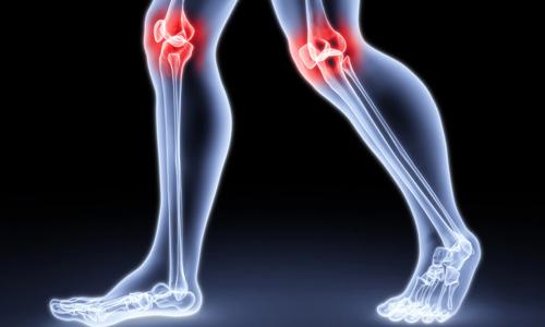 Проблема гнойного артрита