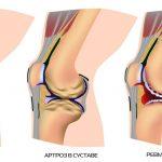 Схема артрита локтевого сустава