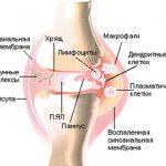 Схема реактивного артрита