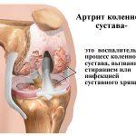 Разрушение коленного сустава из-за попадания инфекций