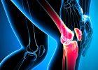 Проблема ревматоидного артрита