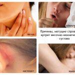 Причины челюстного артрита