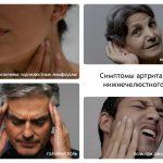Симптомы челюстного артрита
