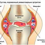 Схема ревматоидного артрита