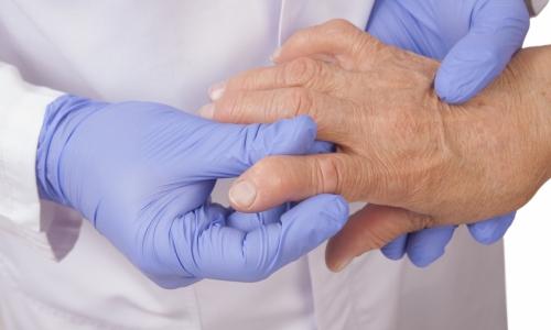 Проблема серопозитивного ревматоидного артрита
